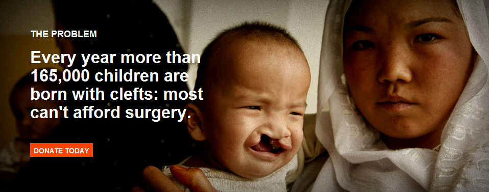 Cleft Palate Excerpt from SmileTrain
