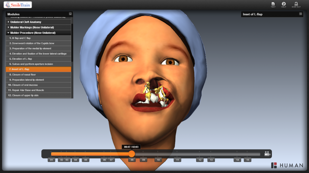 Cleft Surgery Simulation